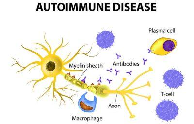 semundje-autoimune