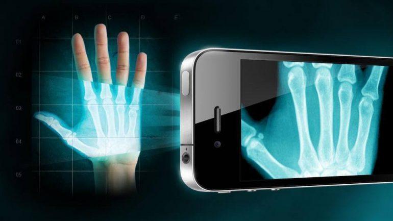 X Ray Iphone