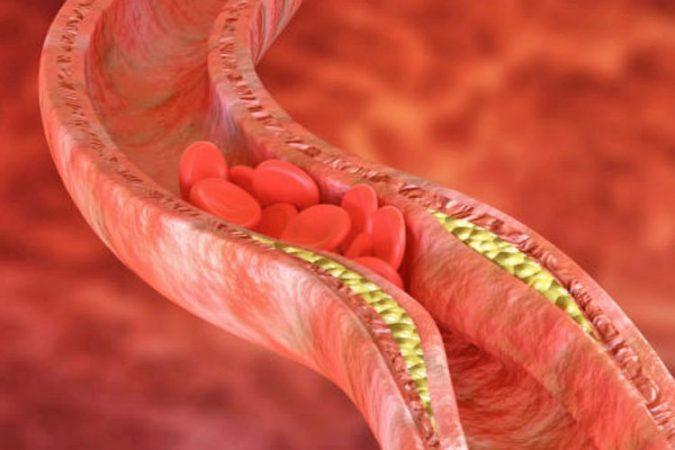 Kolesteroli123 750x500