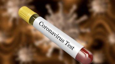 Koronavirusi1