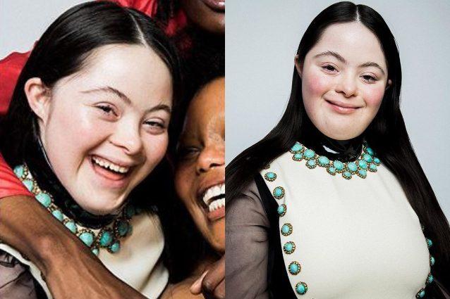 Ellie La Prima Modella Di Gucci Con La Sindrome Di Down Quando La Disabilità Non è Un Limite 638x425 1