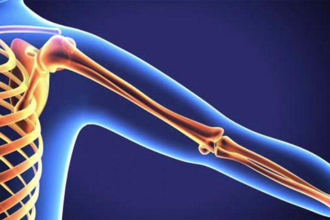 Osteoporoza902 750x500
