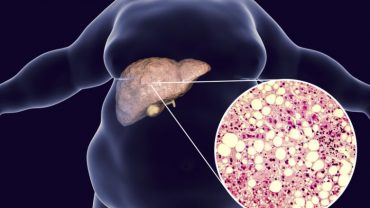 Fatty Liver 780x439