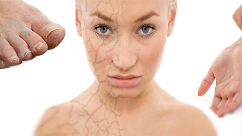 Dry Skin Diabetes 780x439